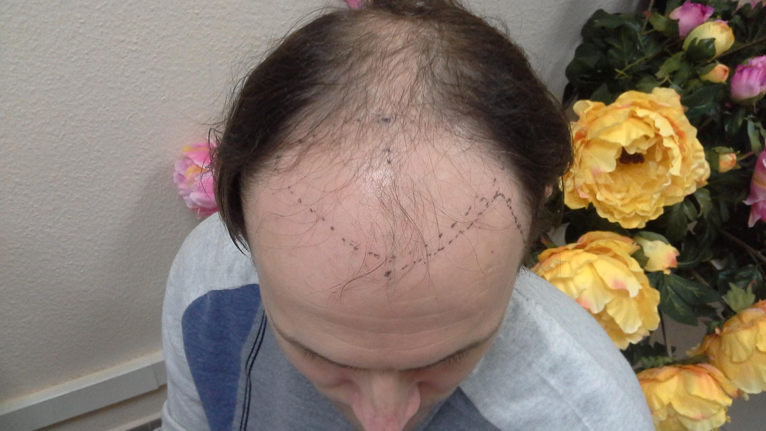 Пересадка волос екатеринбург