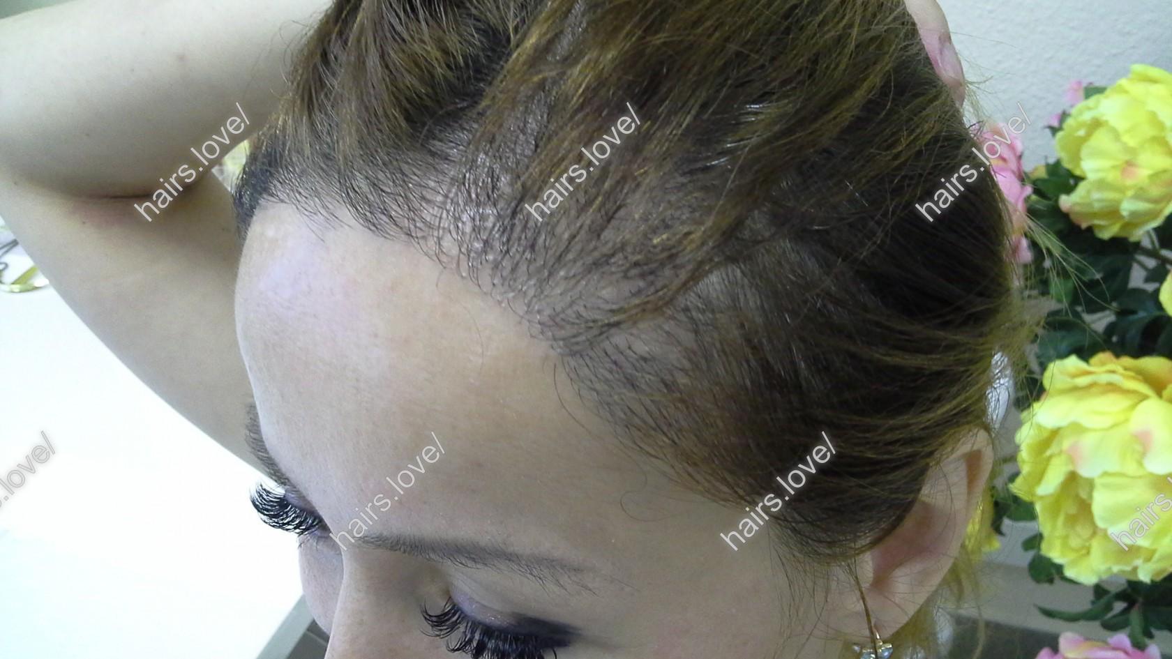 пересадка волос екатеринбург стоимость